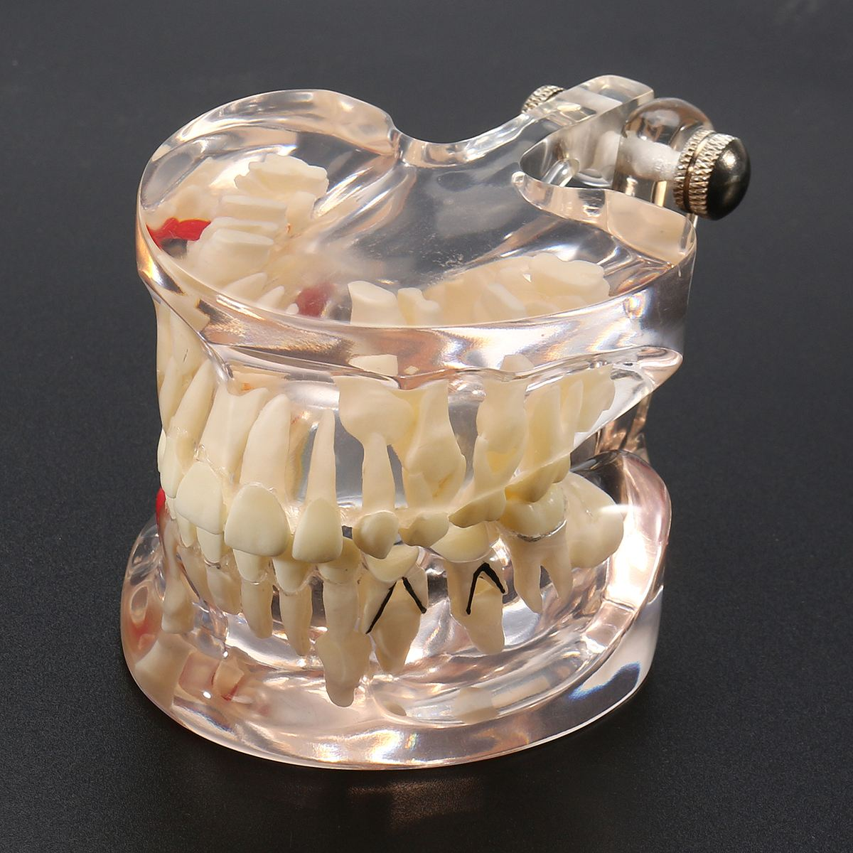 Dental Premature Disease Teeth Model Transparent Caries Pathological Demonstration Tooth Child Study Teaching Showing 2018<br>