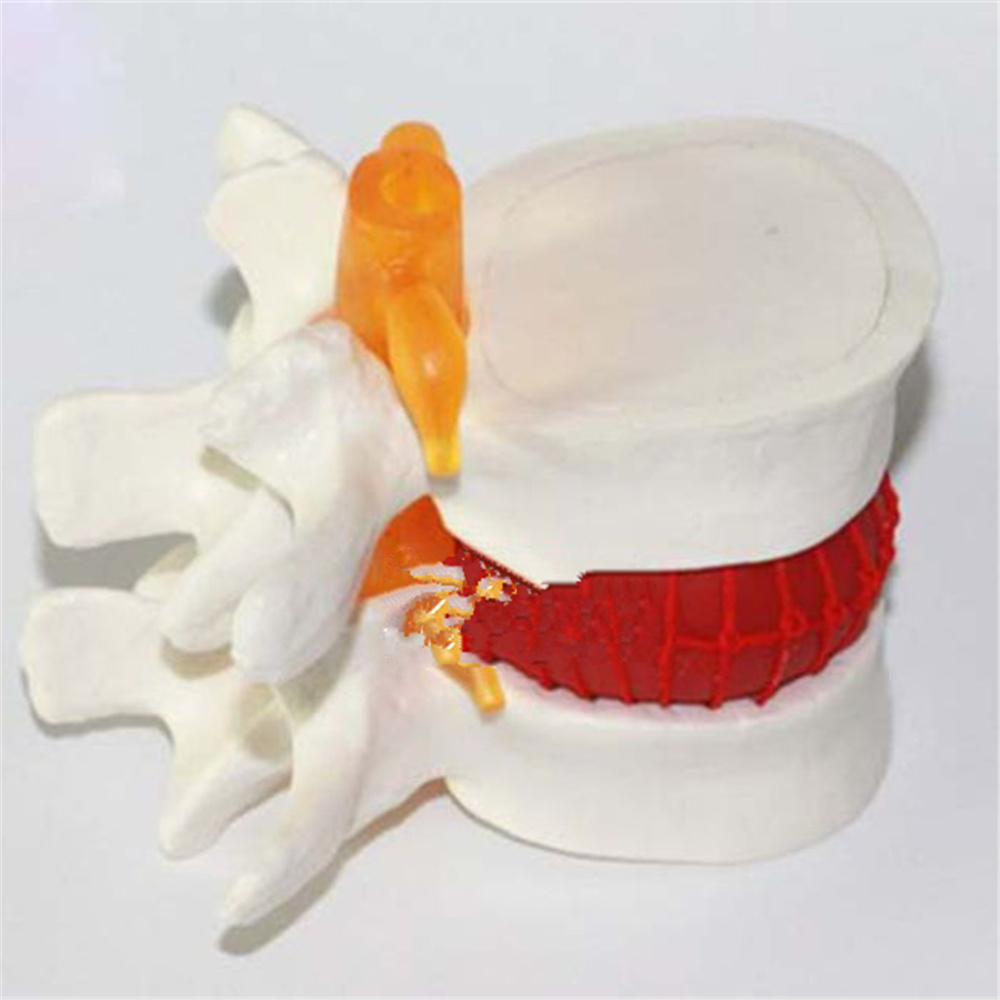 Human Lumbar Disc Herniation Model Demonstration Model of Lumbar Vertebral Spine Model Medical Teaching Resources<br>