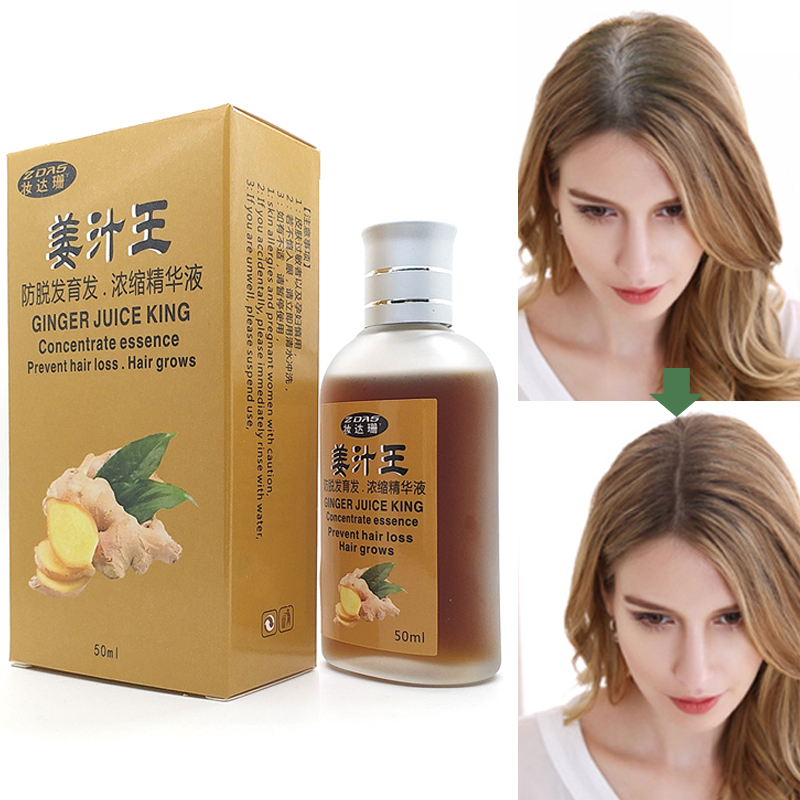 Hair Loss Products Ginger juice serum Natural With No Side Effects Grow Hair Faster Regrowth Hair Growth Products Hair care 3pcs(China (Mainland))