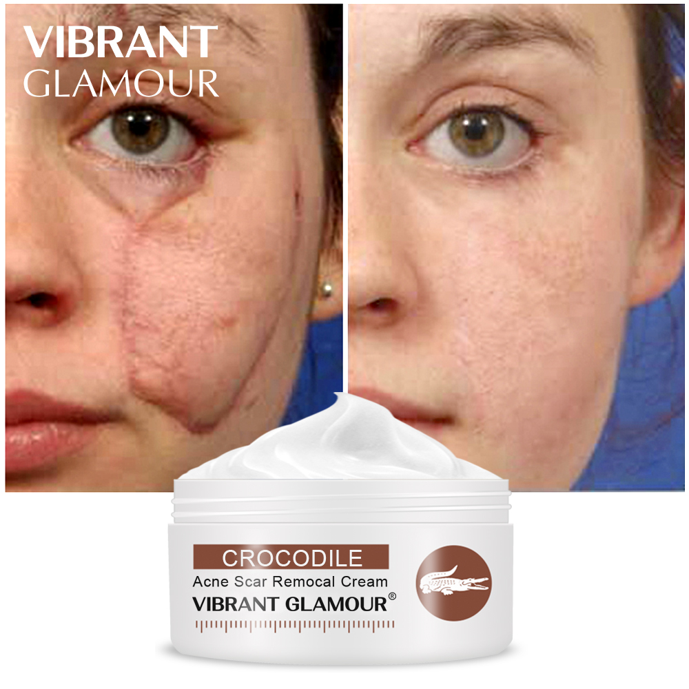 VIBRANT GLAMOUR Crocodile Repair Scar Face Cream  Removal  Acne Spots Whitening Skin For Scald And Surgical Scar Stretch Marks