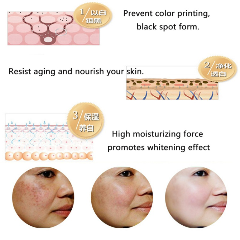Essence Full-body Whitening Goose Bumps Pimples Folliculitis Chicken Skin Repair Essential Oils Remove Dead Skin 5