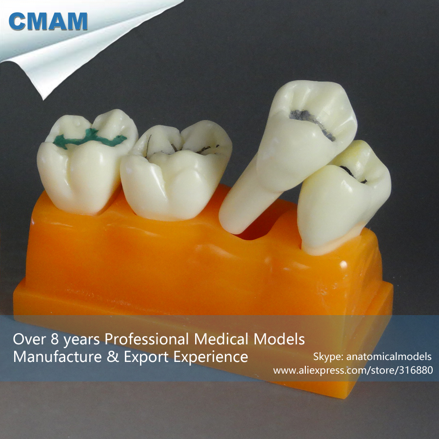 CMAM-DT16V01 Teeth Model Study Teaching Patient Education Decay Fissure Sealant Filling<br><br>Aliexpress