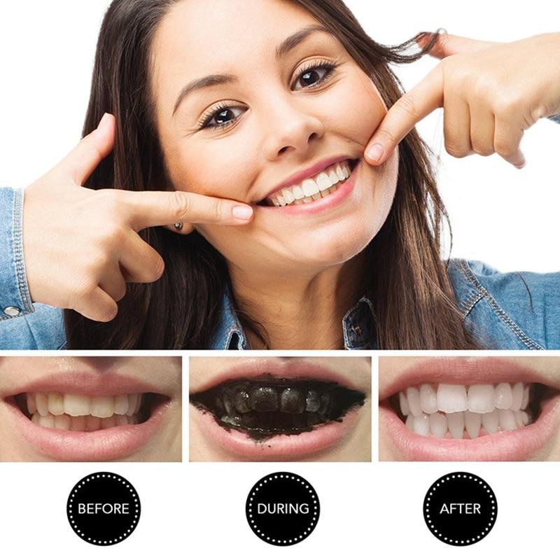 Charcoal teeth whitening