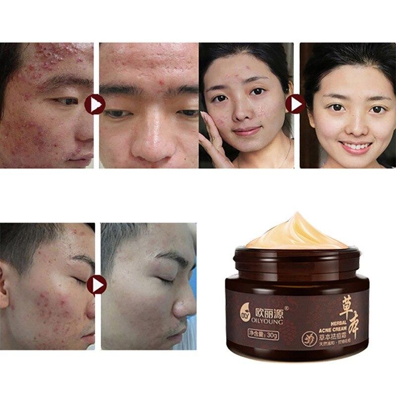 Whitening Beauty Skin Face Care Creams Acne Tre Profession Herbal Acne Cream Anti Pimple Spot Acne Scars Blackhead Removal Cream 4