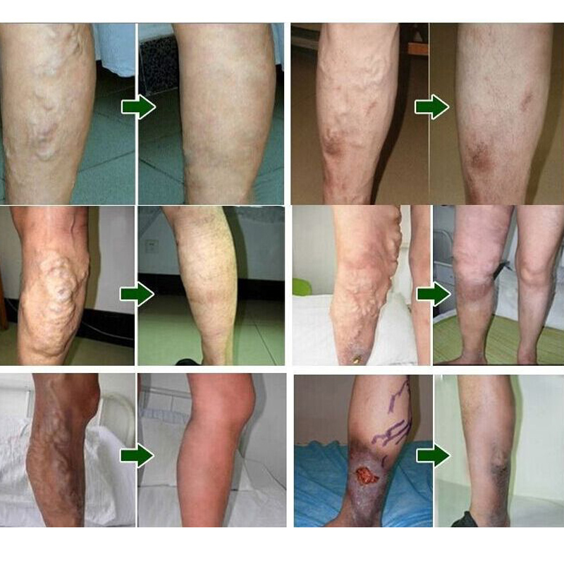 21-Pcs-Spider-Veins-Varicose-Treatment-Plaster-Varicose-Veins-Cure-Patch-Vasculitis-Natural-Solution-Herbal-Patches (4)