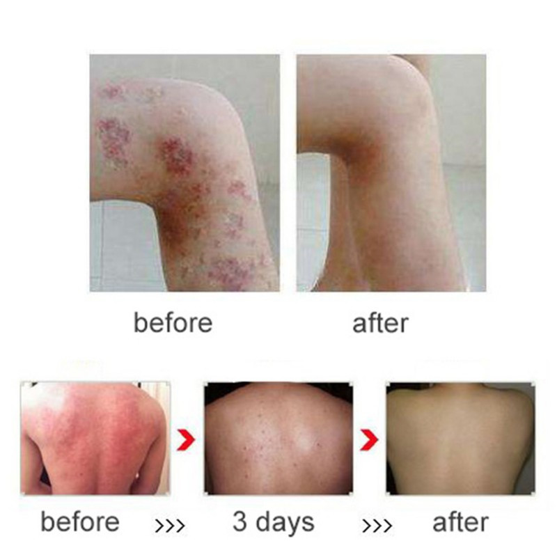 Psoriasis-Dermatitis-And-Eczema-Pruritus-Psoriasis-Skin-Problems-Patches-Psoriasis-Creams