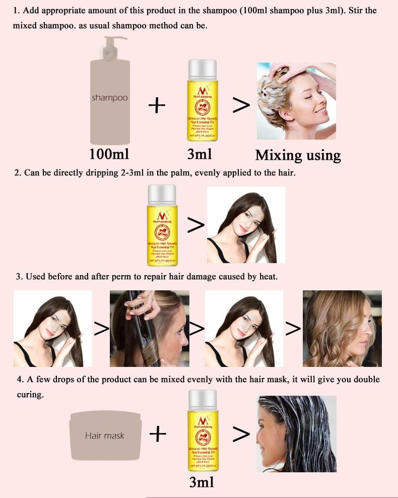 Fast Powerful Hair Growth Essence Hair Loss Products Essential Oil Liquid Treatment Preventing Hair Loss Hair Care Products 20ml 7
