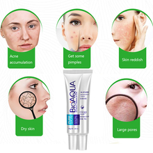 Bioaqua 30g Acne Rosacea Age Spots Freckles removal Night cream Skin whitening Gel anti bacterial reduce pigmentation(China)
