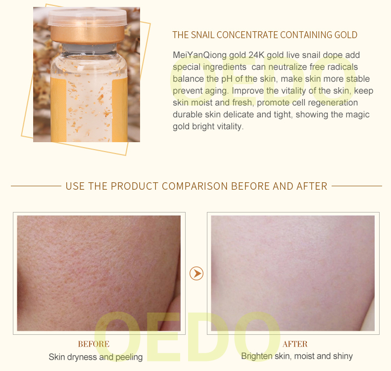 Buy 3 Get 1 Gift Face Care Snail And Gold Essence Fight Wrinkles Anti-Aging Repair Moisturizing Whitening Firming Skin Beauty