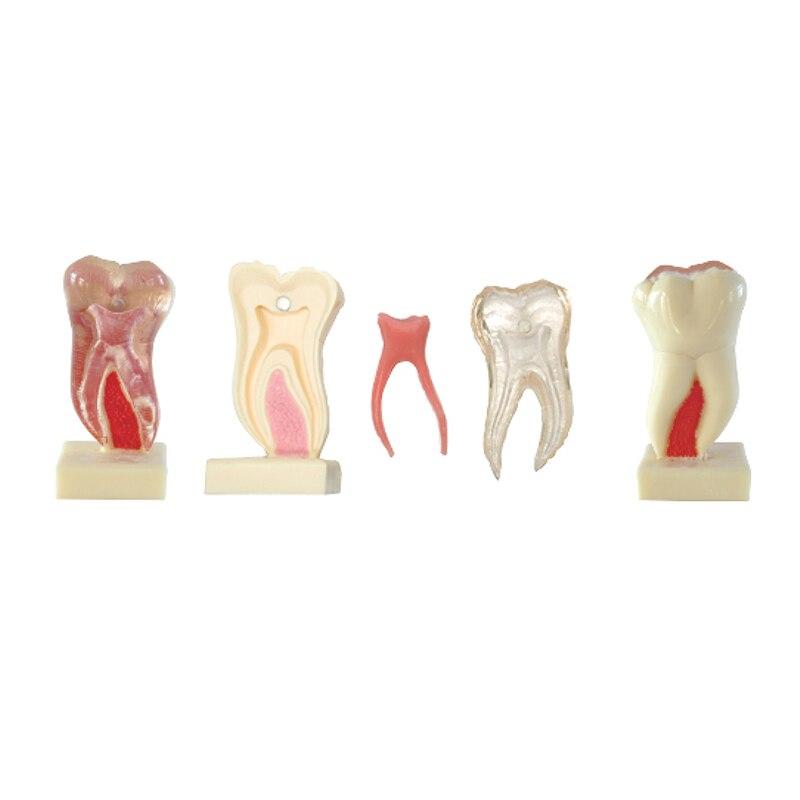 6Times Anatomic Profile Model of Mandibular materiales dentales<br>
