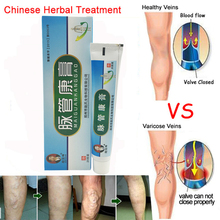2PCS Medical Varicose Veins Treatment Leg Acid Bilges Itching Earthworm Lumps Old Bad Leg Vasculitis Cream Chinese Medicine
