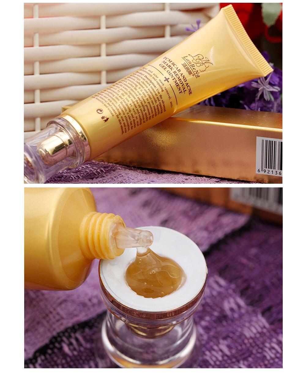 LANBENA Acne Scar Removal Cream Skin Repair Face Cream Acne Spots Acne Treatment Blackhead Whitening Cream Stretch Marks 30ml 9
