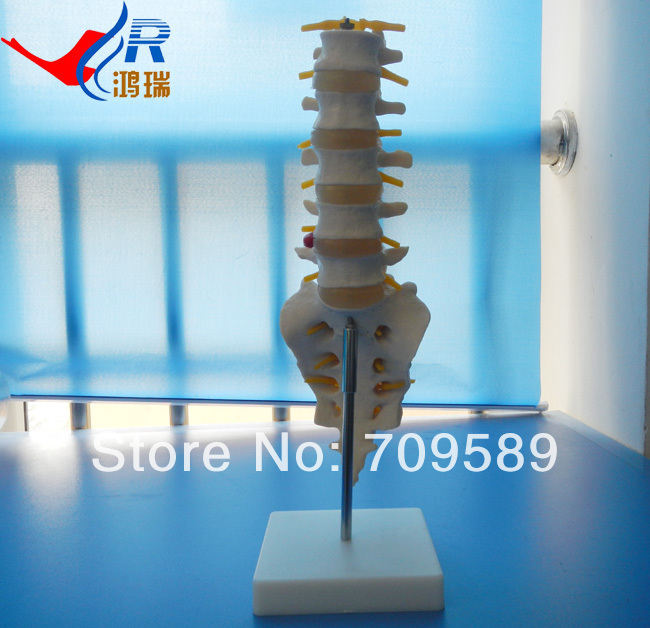 Plastic Lumbar Vertebrae and caudal vertebra Model<br>