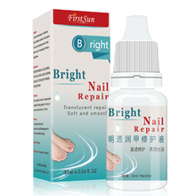 2017 New Nail Fungus Treatment Essence 10ml toe and finger Nail fungus removal feet care Nail Gel Treatment of Onychomycosis(China)