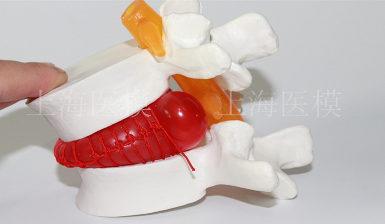 Human lumbar disc herniation model demonstration model of lumbar vertebral spine model<br><br>Aliexpress