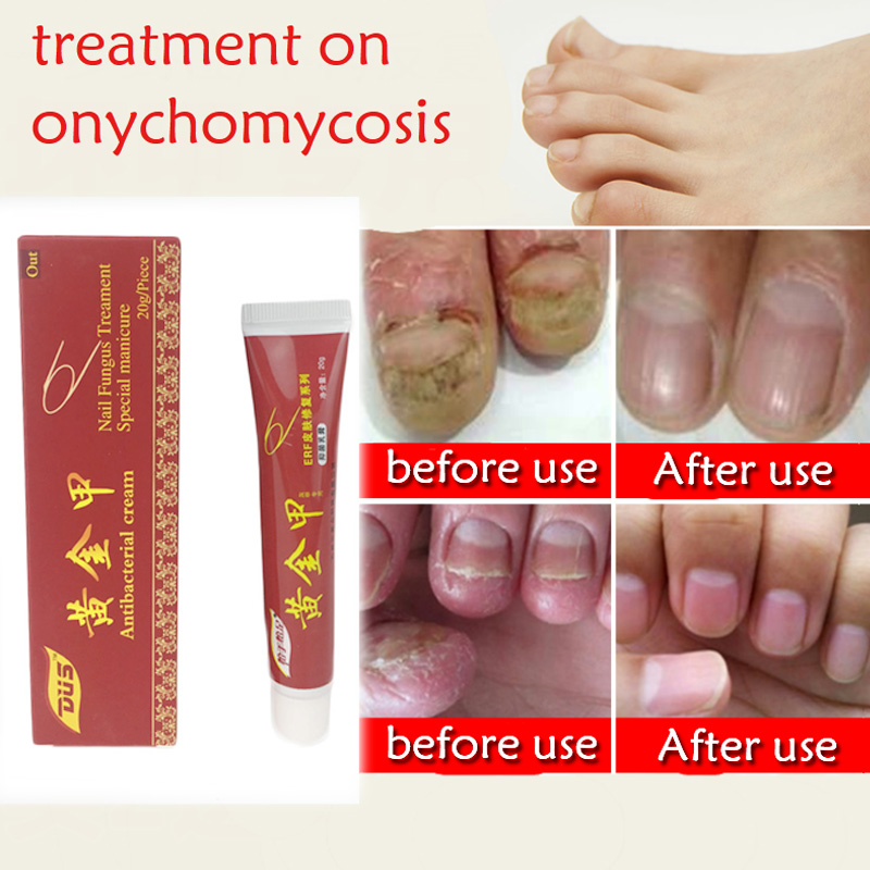 Chinese Medicine Plaster Nail Fungus Treatment Cream Onychomycosis ...