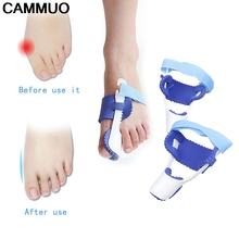 1Pair Hot Selling Big Toe Straightener Bunion Orthotics Hallux Valgus Corrector Foot Care Tool Pedicure Device Concealer Thumb(China)