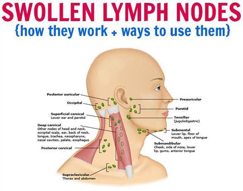 essential-oils-for-swollen-lymph-nodes_720x_38938110-dfac-4a7b-8780-a6f27b241ff6_300x