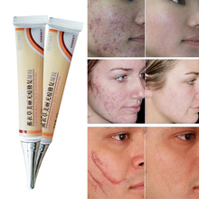 Chinese medicine,face anti care acne treatment cream scar removal oily skin Acne Spots skin care face stretch marks remover