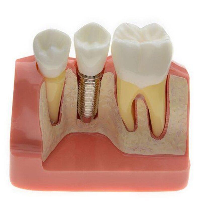 100% High Quality Dental Demonstration Teeth Model Implant Analysis Crown Bridge 2017<br>
