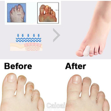2pcs Silicone Gel Toe Tube Foot Corns Remover Blisters Gel Bunion Toe Finger Protector Body Massager Insoles Feet Care(China)