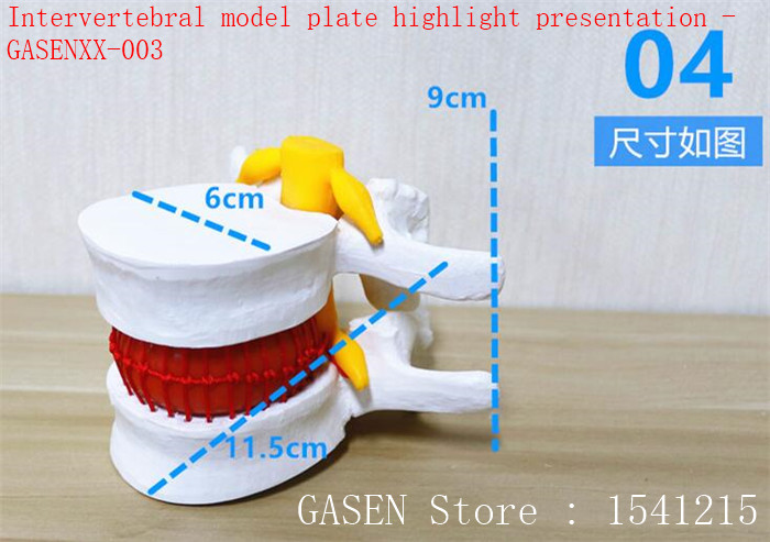 Lumbar enlargement Medical Human Spine Bone Pathology Demonstration Massage massage Human ankle function model - GASENXX-002<br>