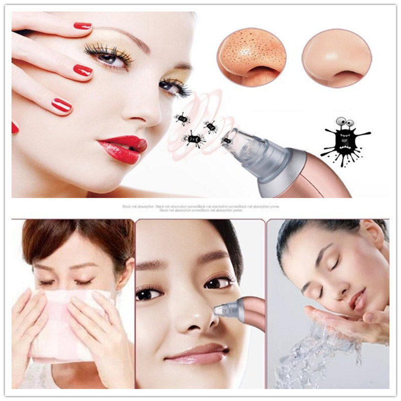 ZD 2018 New Fashion 1Pc Portable Beauty Tool Blackhead Acne Removers 4 Replaceable Heads Multifunction Facial Care Tool XN138M<br>