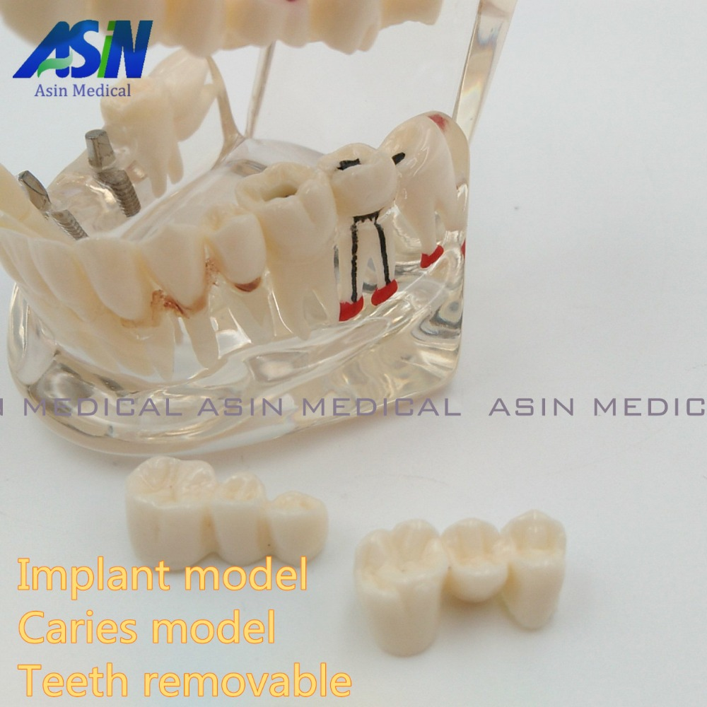 High Quality NEW arrival Dental implant Demonstration Bracket Simulation Caries Teeth Model teeth removable Dentist <br>