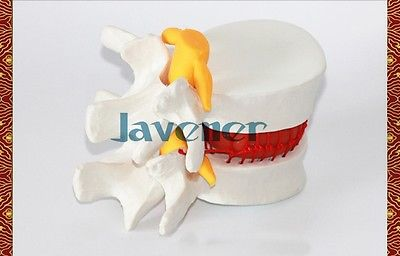 Human Anatomical Lumbar Vertebra Slipped Disc Medical Model Cheap And Fine<br>
