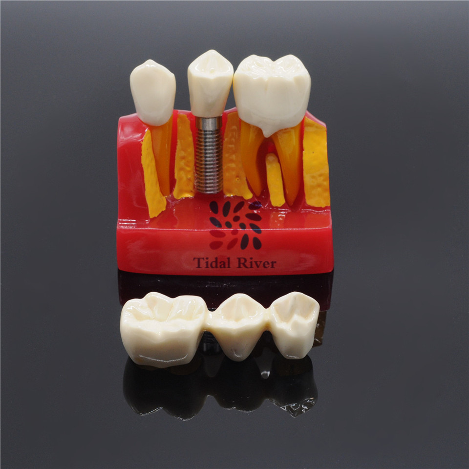 1SET Dentist Clinic Implant Analysis Crown Bridge Demonstration Teeth Model <br>