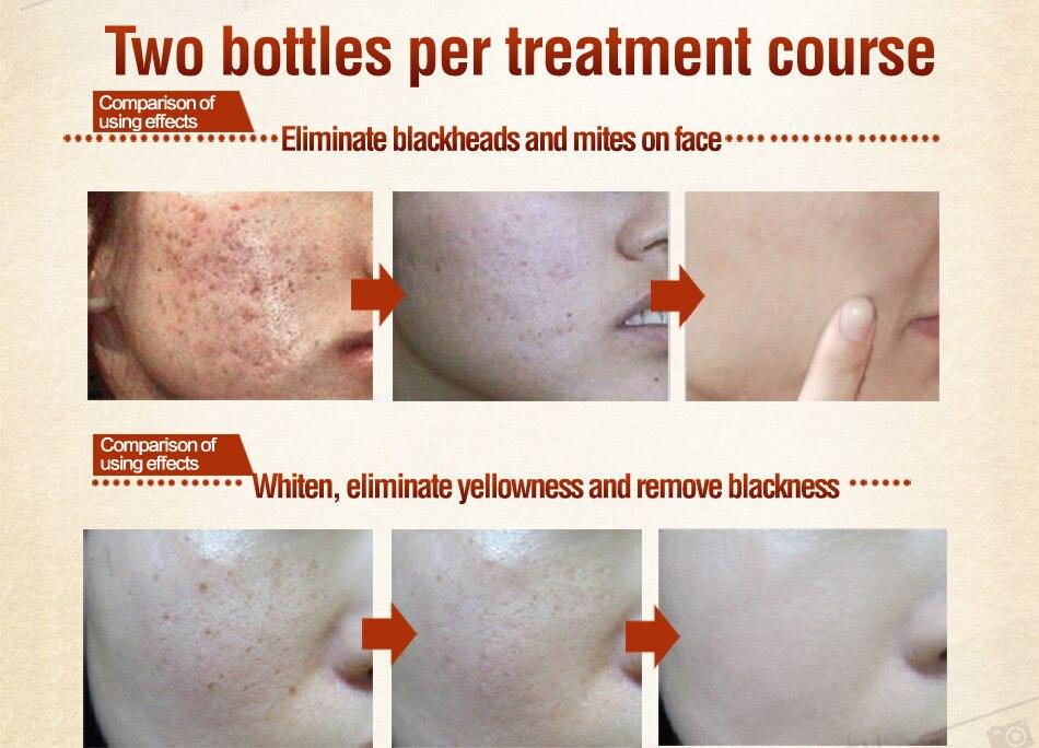 MEIKING Face Mask Skin Care Whitening Acne Treatment Remove Blackhead Acne Facial Masks   sleep Cleaning Moisturizing Type 120g 3