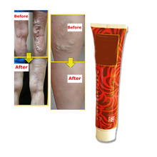 Medical Varicose veins Cream Treatment Anti Foot Leg Vasculitis Phlebitis Earthworm Lumps Veins Herbal Product