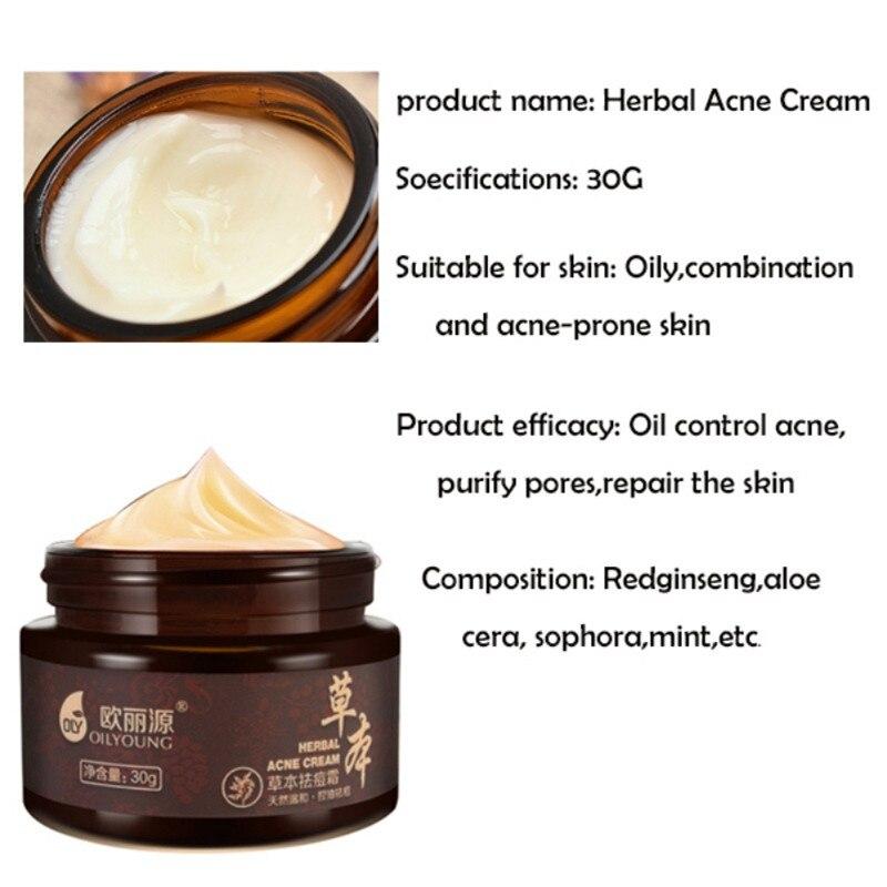Whitening Beauty Skin Face Care Creams Acne Tre Profession Herbal Acne Cream Anti Pimple Spot Acne Scars Blackhead Removal Cream 2