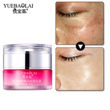 Dark Spot Skin Whitening Face Cream Lightening Blemish Removal Serum Age Spots Freckles Melasma Pigmentation Face Cream
