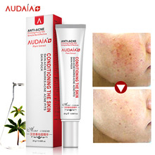 Acne Scar Remove Skin Care Acne Treatment Shrink Pores Gel Bleaching Creams Whitening Moisturizing Scar Removal Face Cream 20g(China)