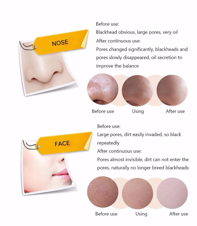 Face Care Acne Treatment Suction Black Mask Mineral Mud Facial Mask Nose Blackhead Remover Peeling Peel Off Black Head Skin Care 15