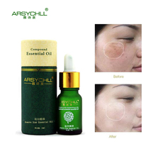 Acne Scar Removal Face Care Cream Acne Spots Skin Care Treatment Stretch Marks Whitening Remove Acne Face Essential Oil Care(China)