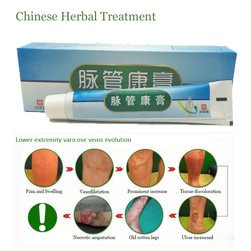 1boxes Chinese natural herbal medicine for treating varicose vascular inflammation massage cream cure varicose vein ointment 1