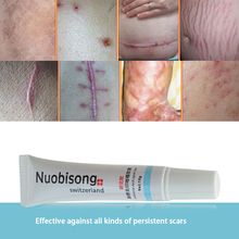 Nuobisong facial scar removal Striae Gravidarum Pigmentation Corrector Anti-Aging cremas face Spots treatment stretch marks