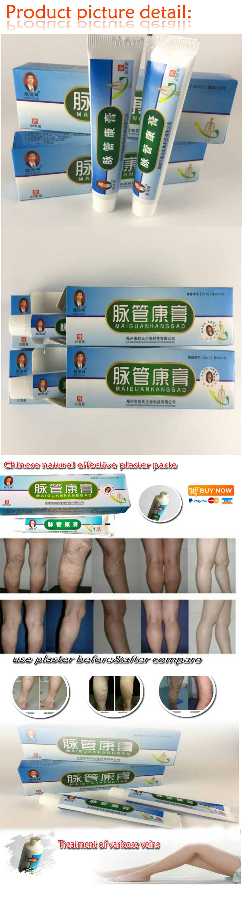 2 boxes Chinese natural herbal medicine for treating varicose vascular inflammation massage cream cure varicose vein ointment 1