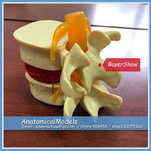ED-ED005 Economic Lumbar Intervertebral Disc Protrusion Display Model , Medical Science Educational Teaching Anatomical Models(China)