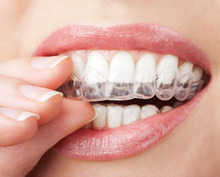 2Pairs Thermoforming Dental Mouthguard Teeth Whitening Trays Bleaching Tooth Whitener Mouth Guard Care Oral Hygiene