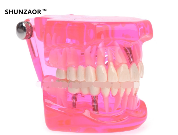 SHUNZAOR 2017 New Dental Study Tooth Transparent Adult Pathological Teeth Model<br>