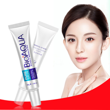 Bioaqua Acne Treatment Cream Scar Removal Oily Skin Acne Spots Skin Care Face Stretch Marks Nuobisong Lanbena Face Anti Care