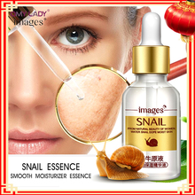OMY LADY IMAGES face lifting essence skin care anti aging wonder charm ageless liquid anti wrinkle serum youth snail cream gel(China)