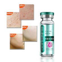 Boto x Acid Instantly Ageless Powerful Anti-wrinkle Anti-aging Face Skin Care Products Botulinum Concentrate Allantiasis 15ml