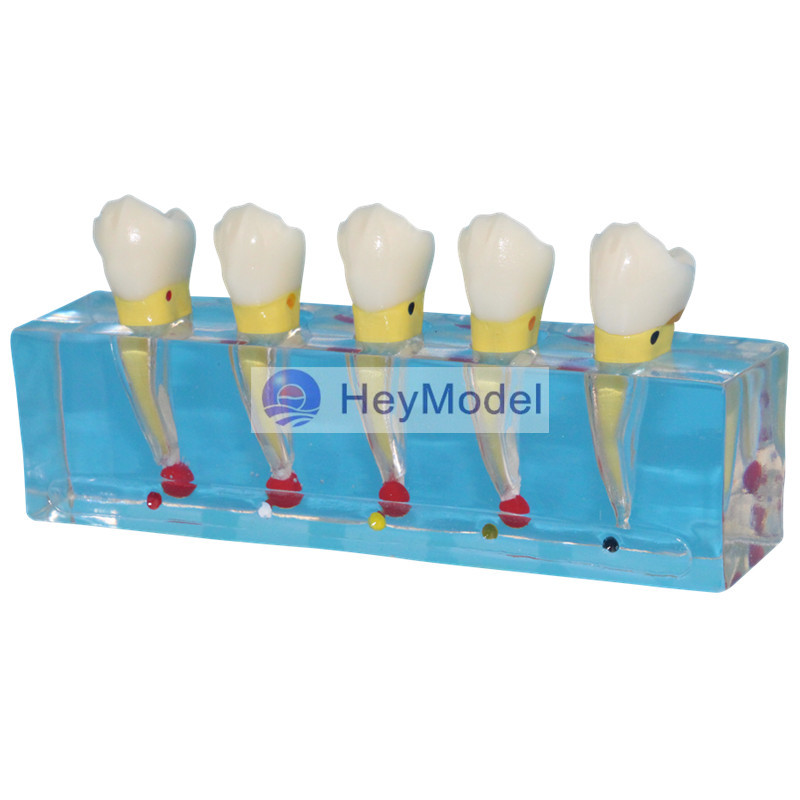HeyModel Transparent Dental pulp model <br>
