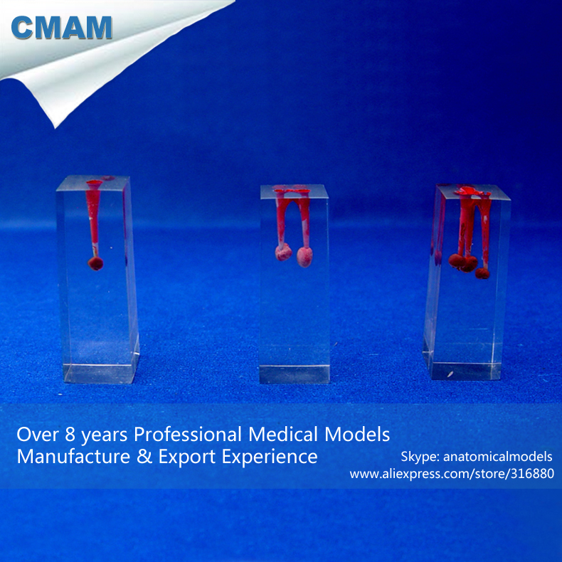 12581 CMAM-TOOTH13 Transparent Block Root Canals with Silicone Ball for Root Canal Filling Practice, 3pcs / pack<br>