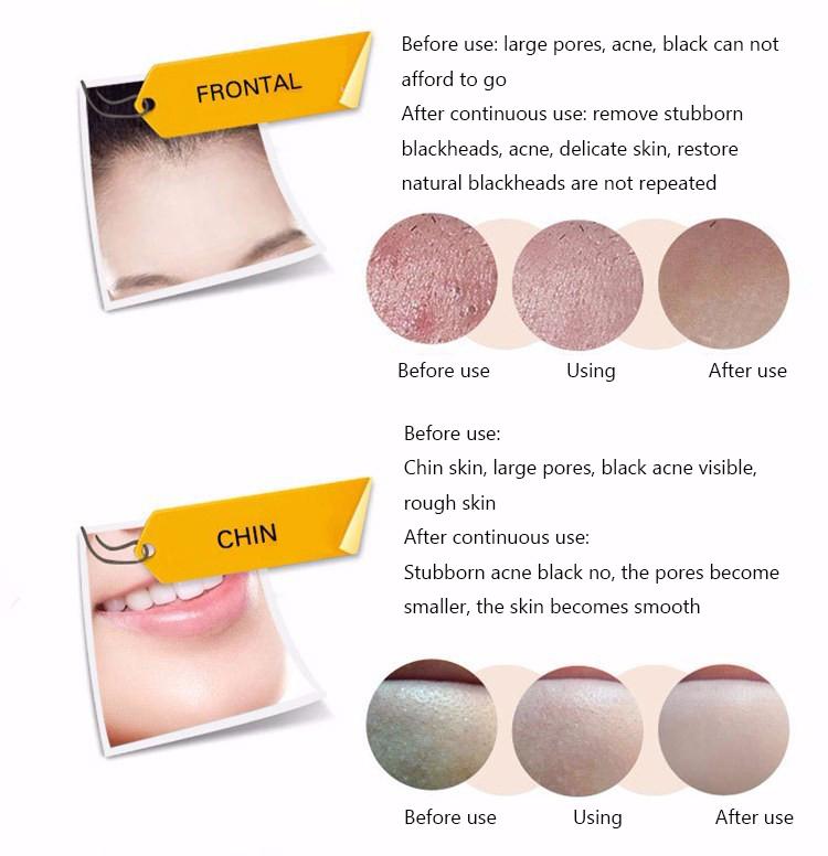 Face Care Acne Treatment Suction Black Mask Mineral Mud Facial Mask Nose Blackhead Remover Peeling Peel Off Black Head Skin Care 16