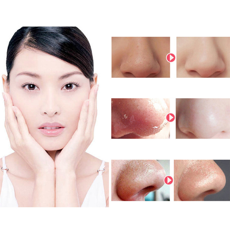 Electric Pore Acne Blackhead Remover Cleaner Skin Care Vacuum Extraction USB Rechargeable Comedo Suction Tool Beauty Machine 7